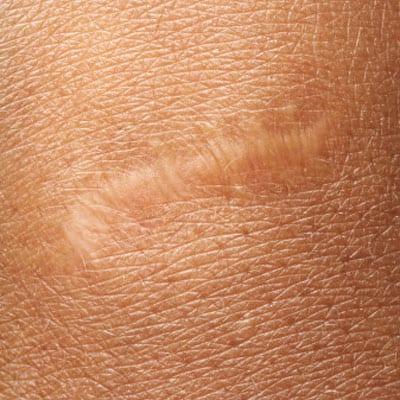 cicatrizacion