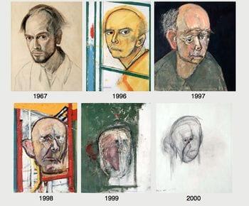 Artista con la enfermedad de alzheimer.