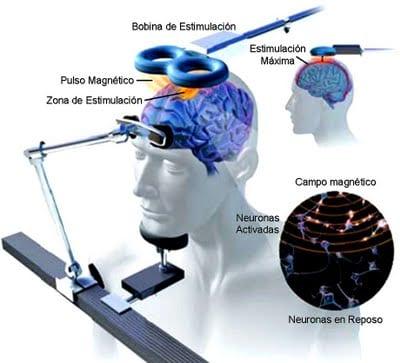 estimulacion magnetica