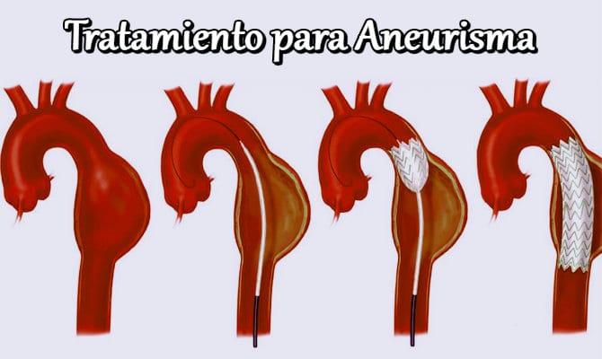 causas y sintomas del aneurisma
