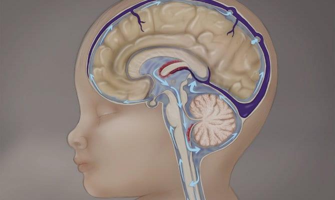 Ventrículos agrandados de hidrocefalia