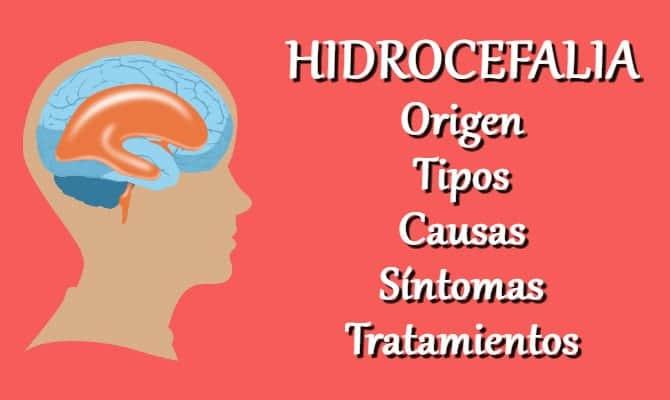 Síntomas de hidrocefalia comunicante