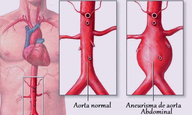 Aneurisma — Qué es, causas, síntomas y tratamientos