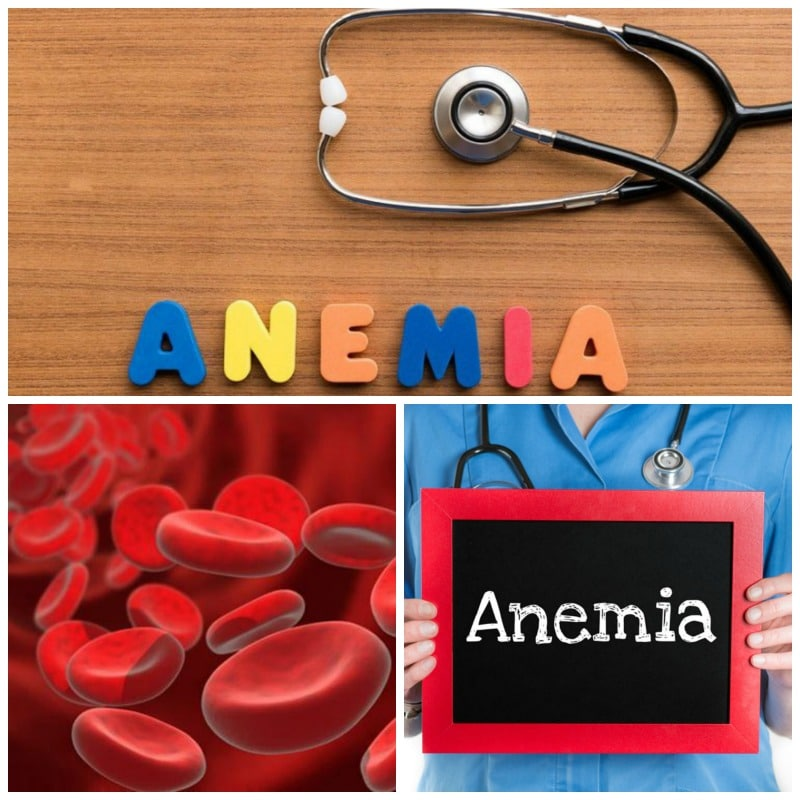 Tipos de anemia y generalidades relacionadas