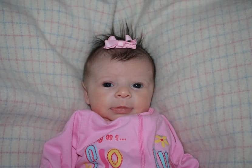 bebé con el síndrome de williams