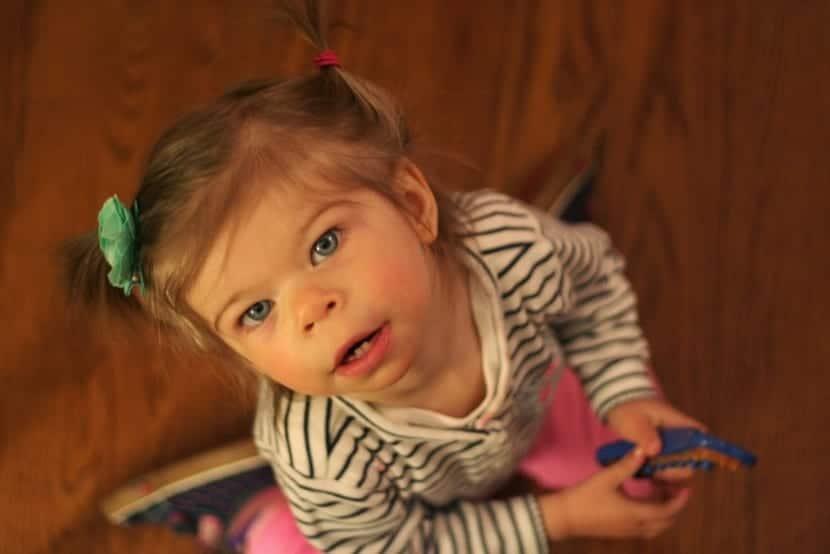 síntomas que se manifiestan en el síndrome de williams