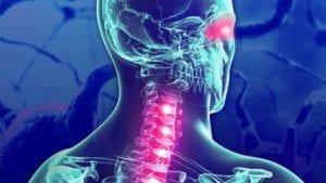 dolores en la esclerosis multiple