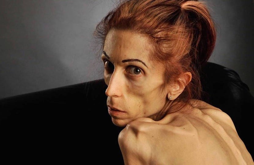 mujer con mucha anorexia