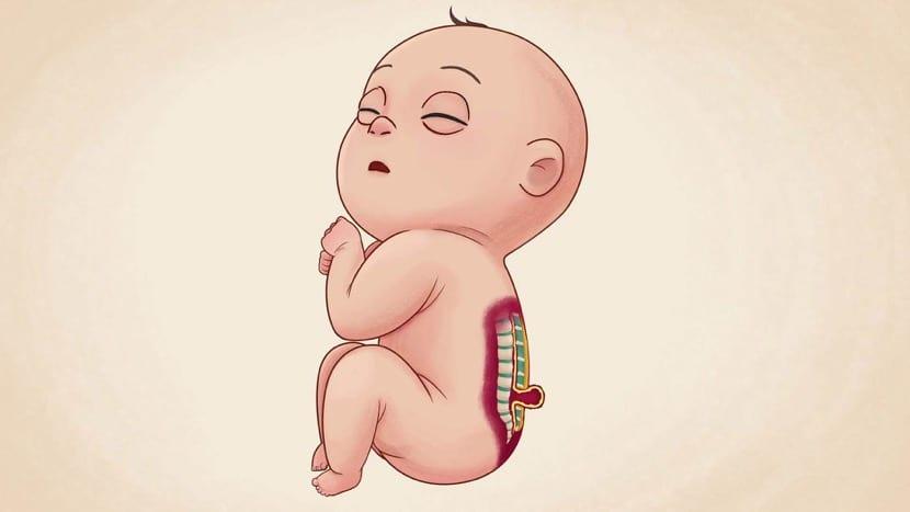 dibujo de bebe con espina bifida